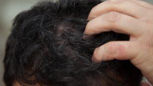 Tedavi Yöntemi ; Saç derisinde egzama nasıl tedavi edilir?