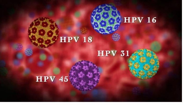 Kadınlarda HPV Virüsü Belirtileri ve Tedavi Yöntemleri