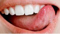 Dildeki yaralara ne iyi gelir ? Nasıl Geçer ? Evde Bitkisel Çözüm