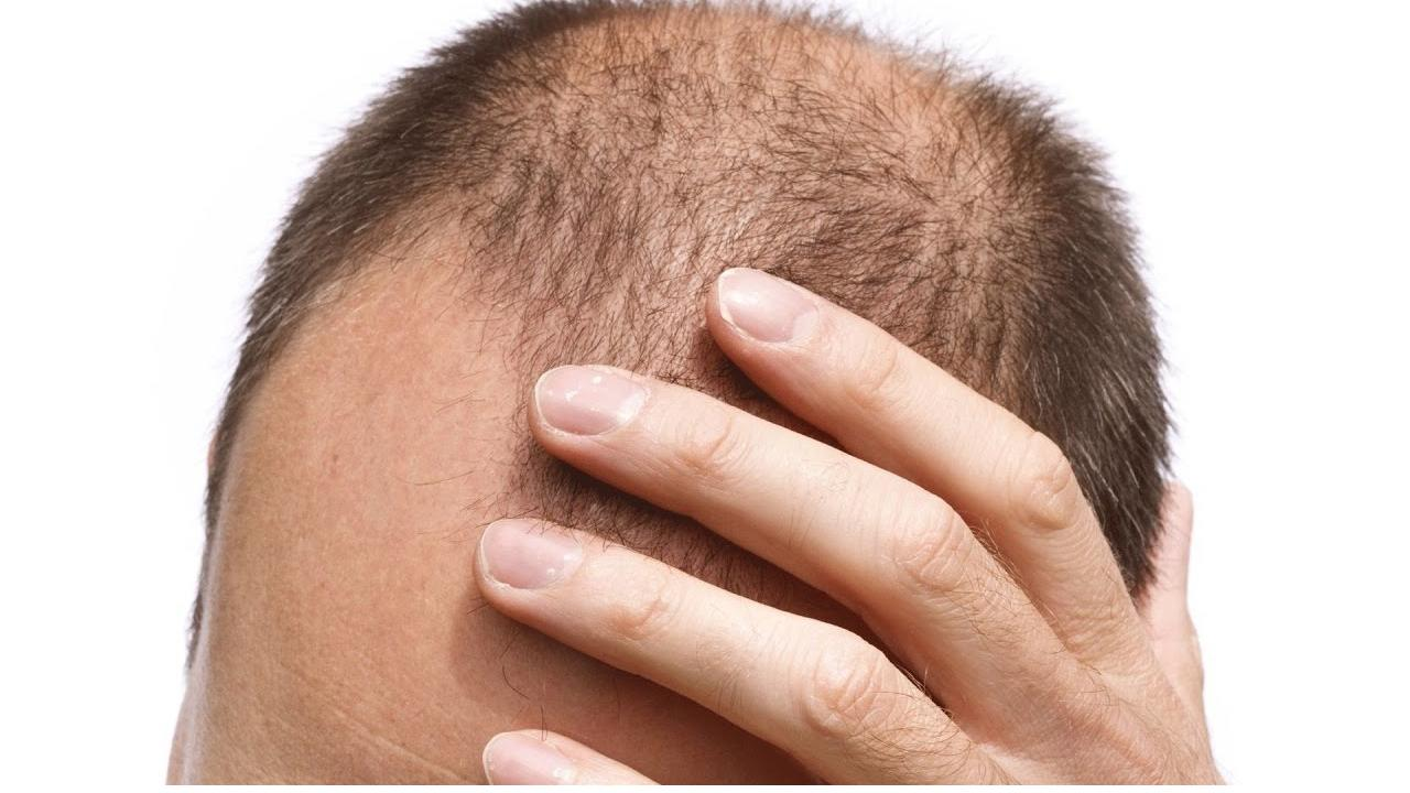 Saç Dökülmesine İyi Gelen Yağlar