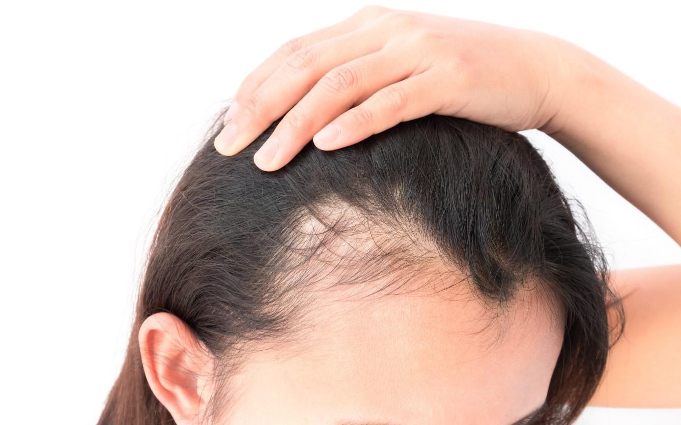 Kadınlarda Saç Dökülmesi Neden Olur, Kadınlara Saç Ekimi Nasıl Yapılır?
